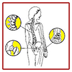 Graphic showing spine and joints